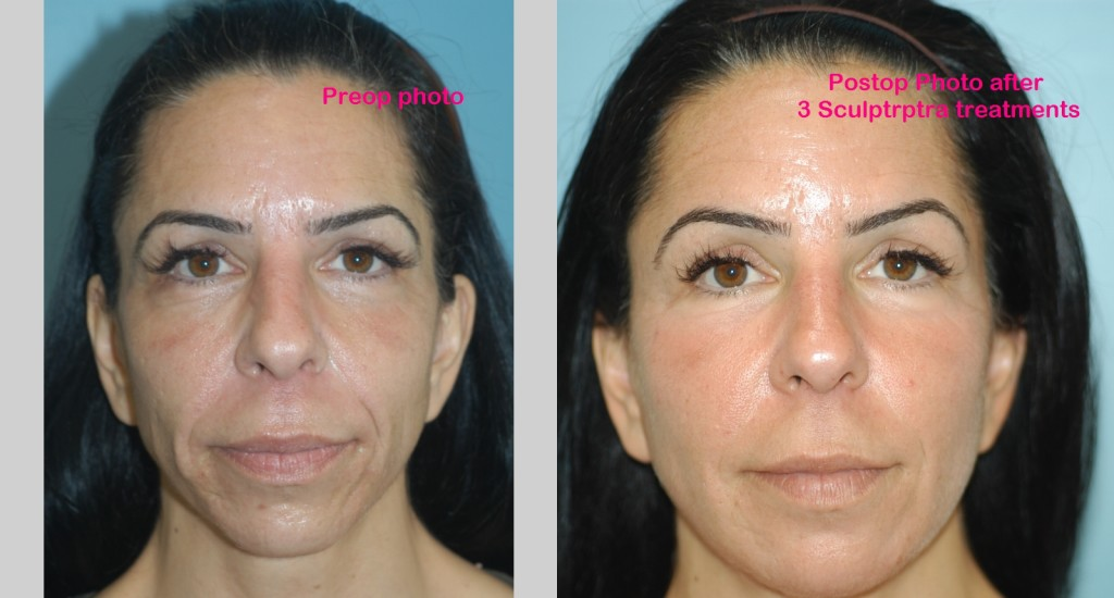 Anti-Aging Fillers and Injectables Before and After
